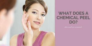 What Does A Chemical Peel Do - Woman With Beautiful Skin