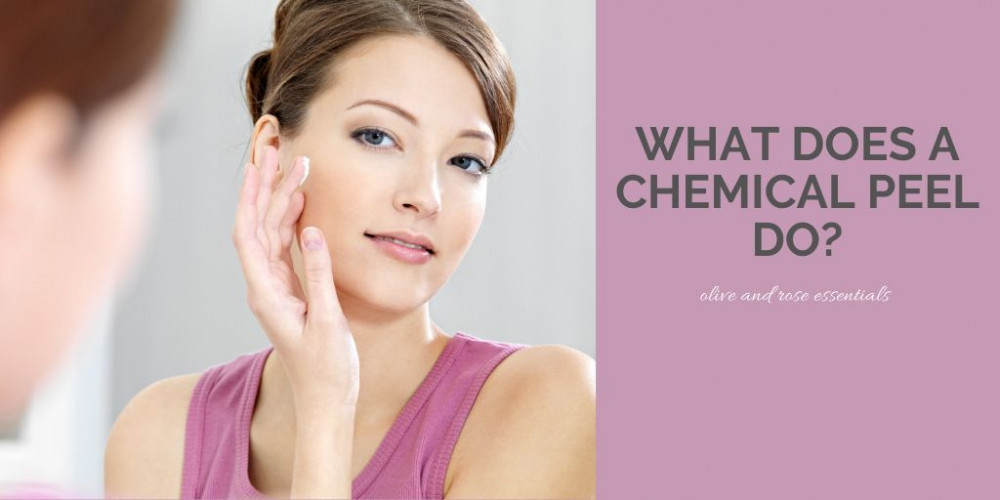 What Does A Chemical Peel Do? - Woman With Beautiful Skin